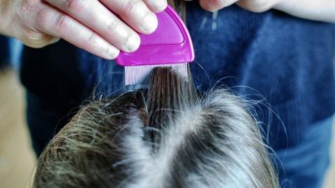 mão a passar pente no cabelo para eliminar piolhos