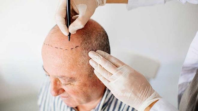 Profissional a marcar uma zona calva da cabeça de um homem com vista ao transplante capilar