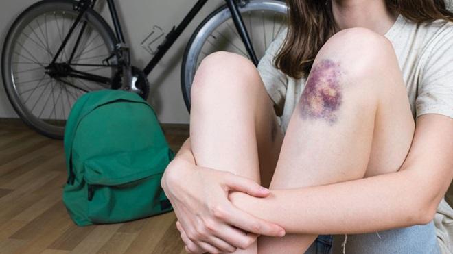 criança com uma nodoa negra no joelho