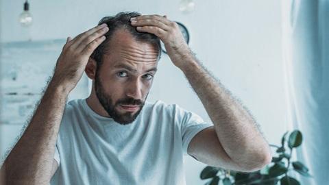 Homem a ver-se ao espelho e a observar a queda de cabelo