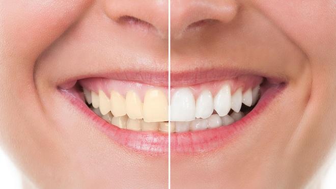 branqueadores dentes