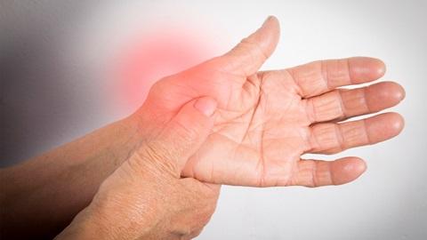 Artrite reumatoide: medicamentos gratuitos para os doentes