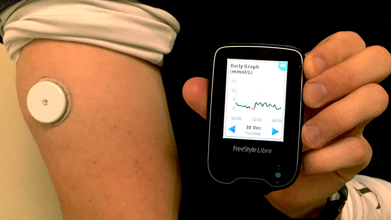Conheça a nossa apreciação ao medidor contínuo de glicose Freestyle Libre, da Abbott.
