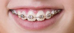 aparelho dentes